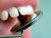 Почему после брекетов разъехались зубы