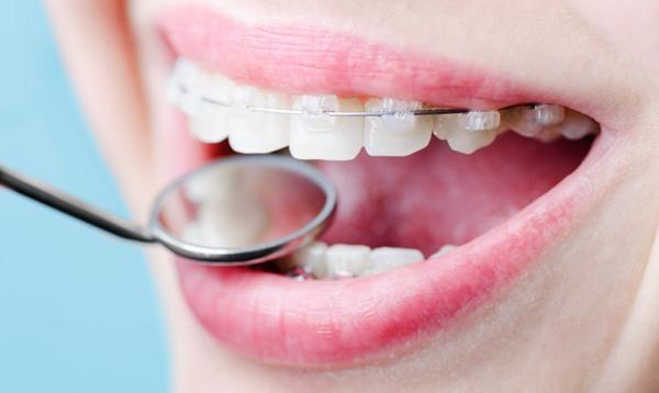 Что делать, если шатаются зубы в брекетах