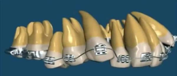 Могут ли шататься зубы при ношении брекетов