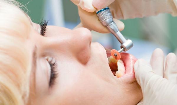 Абразивная сепарация зубов до и после