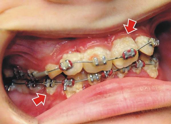Почему шатаются зубы после снятия брекетов