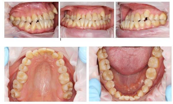 Высокое положение отдельных зубов