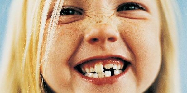 Исправление высокого, низкого положения отдельных зубов