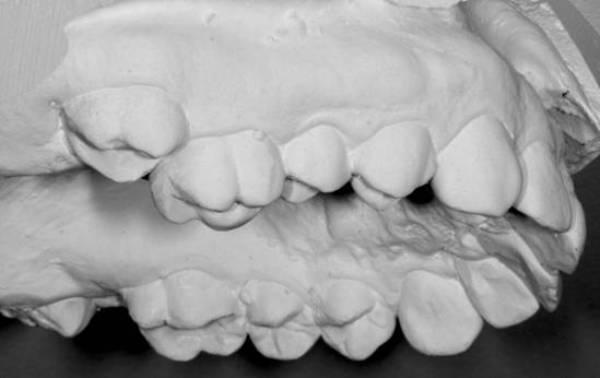 Диагностика и лечение зубоальвеолярного удлинения