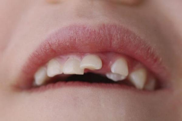Диагностика и лечение зубоальвеолярного укорочения