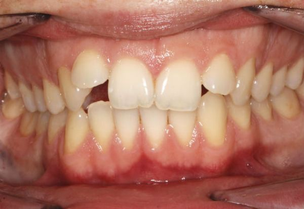 Зубоальвеолярное укорочение в области моляров и резцов