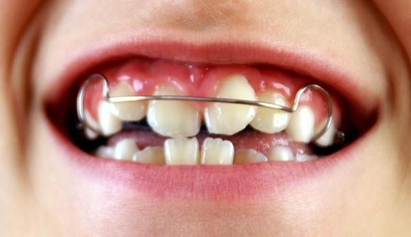 Зубоальвеолярное укорочение в области резцов