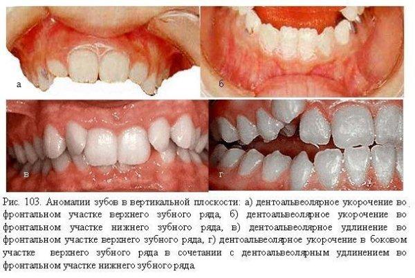 В каком направлении определяется зубоальвеолярное укорочение