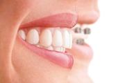Современные способы выравнивания зубов