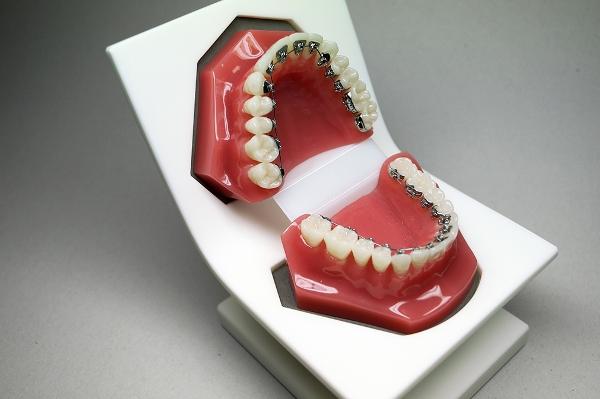 Способы выравнивания зубов без брекетов