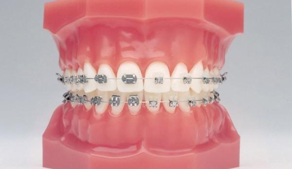 Способы выравнивания зубов у взрослых