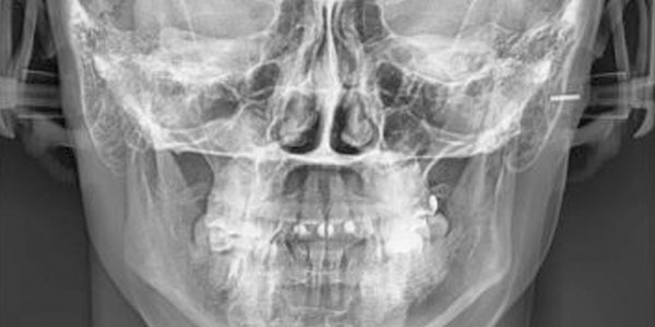 Телерентгенограмма в ортодонтии цена