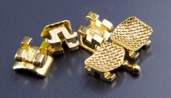 Золотые брекеты цена