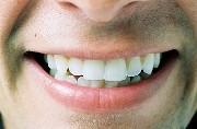 Кривая нижняя челюсть