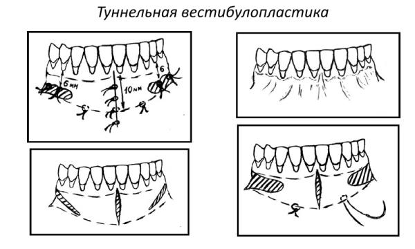 Мелкое преддверие полости рта симптомы