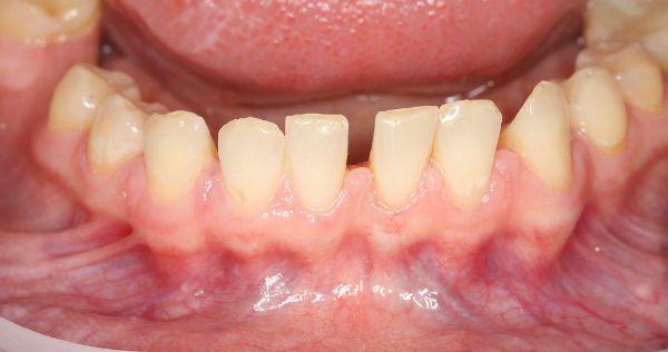 Причины развития мелкого преддверия полости рта