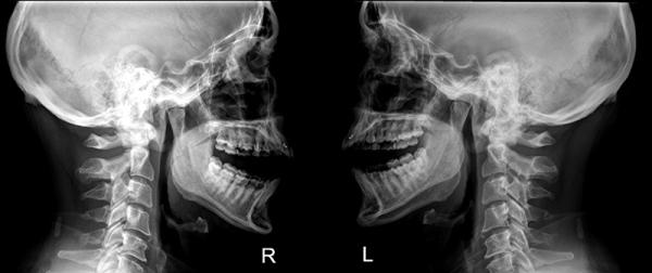 Синдром костена симптомы лечение