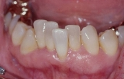 Скученность зубов на нижней челюсти