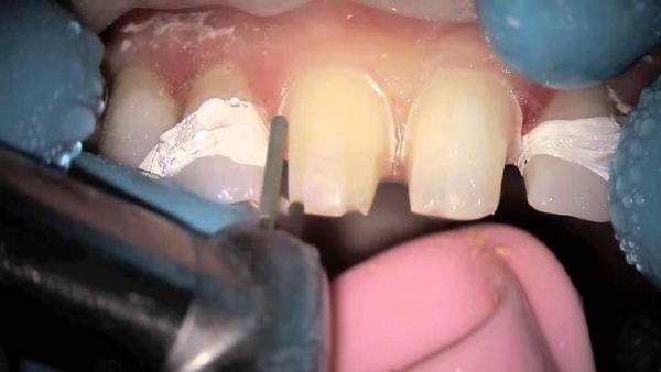 Подпиливание кривых передних зубов цена
