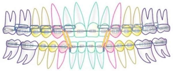 Особенности многопетлевой дуги