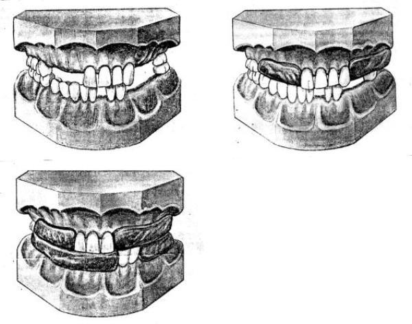 Этапы определения центральной окклюзии при частичном отсутствии зубов