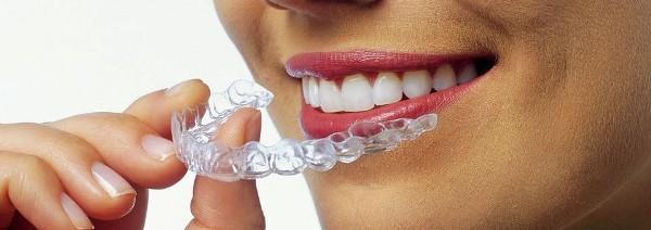 Основы коррекции прикуса капами 3D Smile