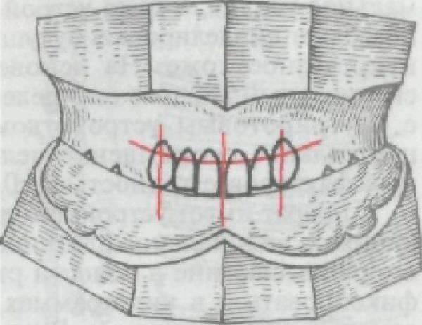 Методы контроля правильности определения центральной окклюзии