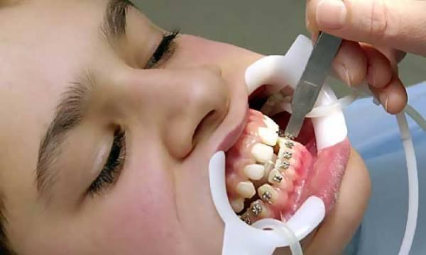 Сменный прикус зубная формула