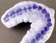 Снятие слепка зубов