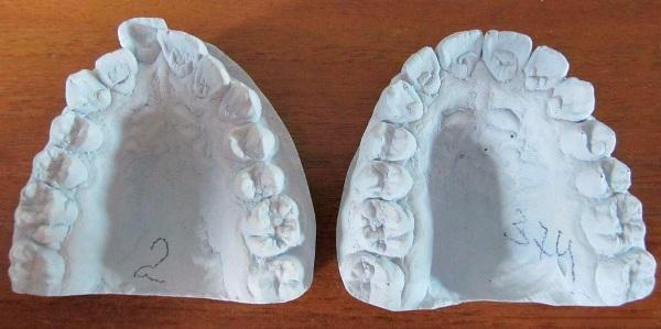 Разновидности слепков зубов