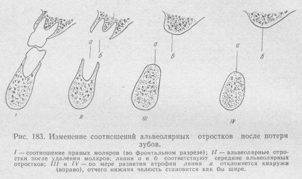 Старческая прогения диагностика