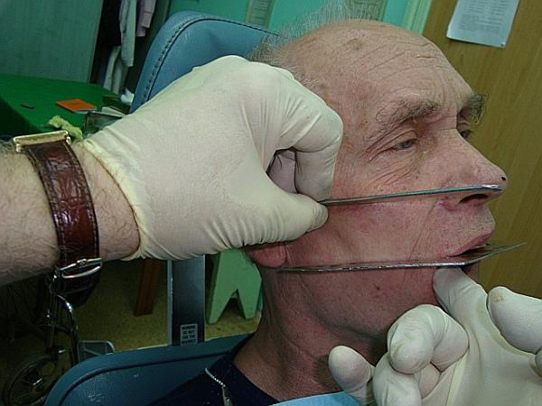 Старческая прогения лечение