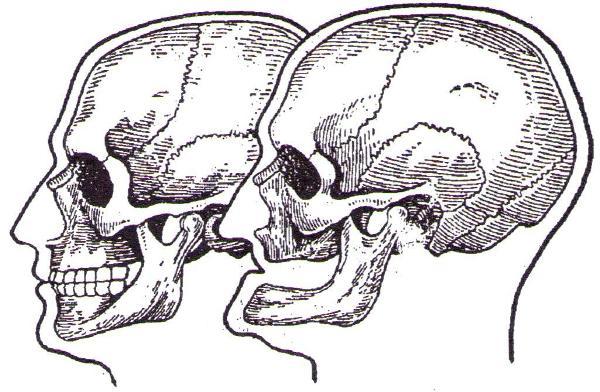 Типы старческой прогении и методы ее лечения