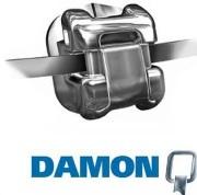 Брекет система Damon Q цена