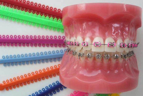 Кольца american orthodontics