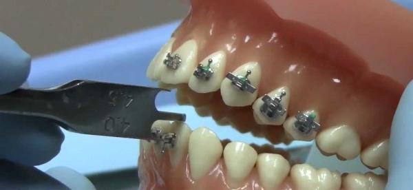 American orthodontics каталог