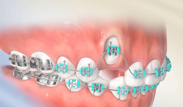 Показания и противопоказания к ортодонтическому вытяжению зуба