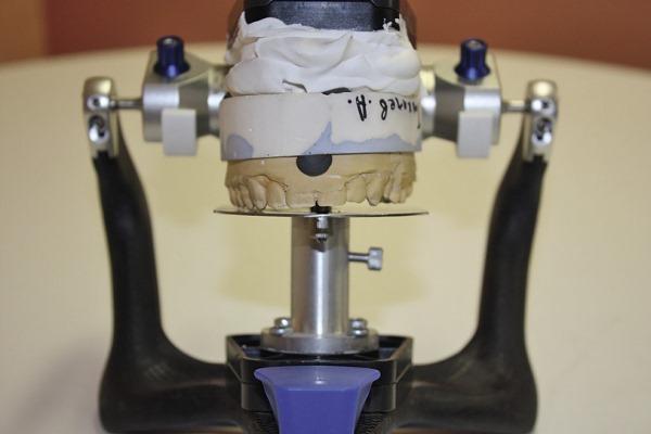 Отзывы экспертов об анализаторе hip плоскости