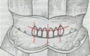 Методика определения центральной окклюзии