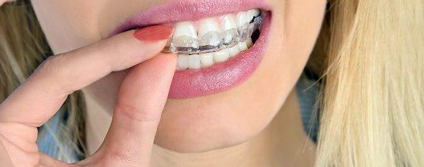 Сплинт терапия в стоматологии