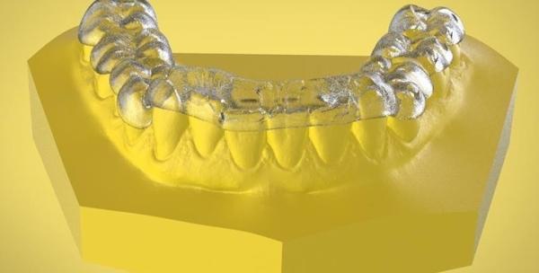 Плюсы и минусы сплинт терапии в стоматологии