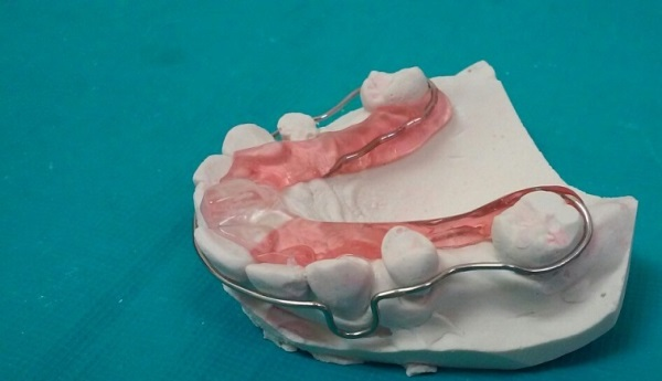 Изготовление депрограмматора койса в стоматологии