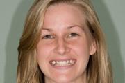Бывают ли молочные зубы у взрослых
