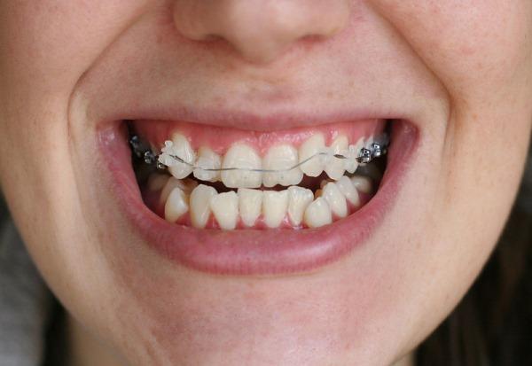 Зачем нужно удалять зубы перед установкой брекетов