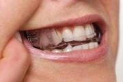 Сплинты в стоматологии