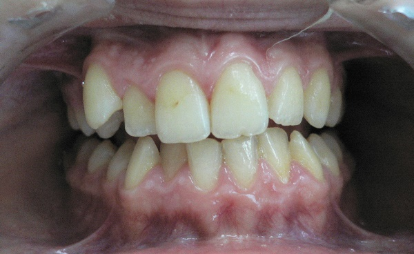 Зубы нижней и верхней челюсти