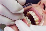 Больно ли ставить брекеты на зубы детям