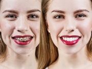 Зубы после брекетов фото до и после