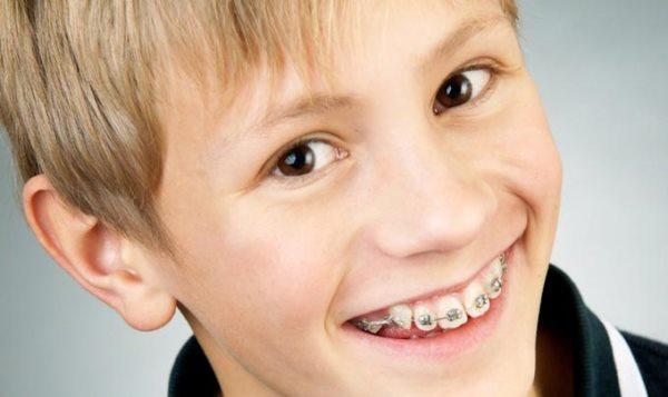 Мотивация для пациента ортодонтии на установку брекетов