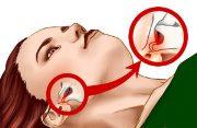 Синдром Костена лечение